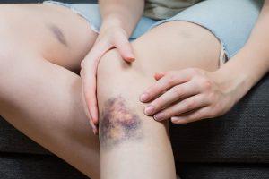 Los Hematomas pueden acompañarse o no de dolor, e incluso pasar desapercibidos.