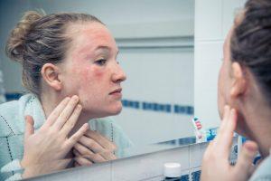 A menudo las causas por las que aparecen las Ronchas de piel se desconocen y suelen desaparecer por sí solas.