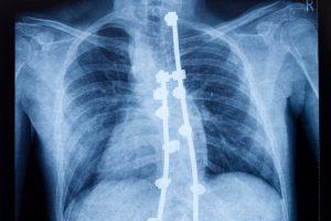 La cirugía de la escoliosis se basa en la fusión de los niveles vertebrales afectados, lo que llamamos artrodesis. Para ello se cuentan las articulaciones posteriores y se usa un injerto de hueso para que se fusionen las vértebras.