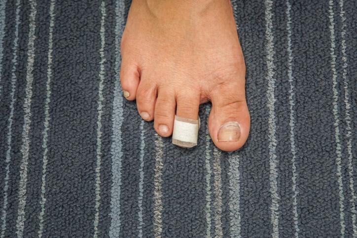 Cirugía del Dedo en Martillo