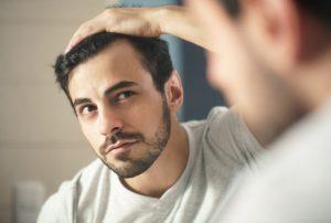 El implante capilar se realiza para esas personas que tienen pérdida de pelo por alopecia, por tratamientos médicos o por enfermedades.