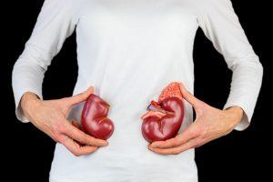 Una insuficiencia renal puede instaurarse de forma aguda ante un fracaso renal agudo o de forma progresiva ante una enfermedad de evolución crónica. Generalmente, al hablar de insuficiencia renal solemos referirnos a insuficiencia renal crónica. Es muy importante recalcar que la detección precoz de la insuficiencia renal mejora su morbilidad.