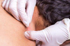 La PAAF, es una punción que se realiza mediante una aguja fina, en aquellos lugares del cuerpo donde se considere necesario analizar las células para determinar su origen.