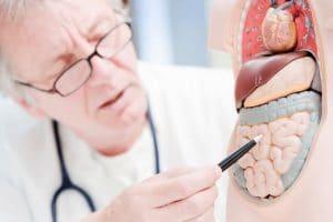 La ileostomía es la técnica quirúrgica en la que se comunica el intestino delgado en su parte final a la piel. Se usa para que, a través de esta nueva salida llamada estoma (es la comunicación al exterior del intestino hacia la pared abdominal), se viertan al exterior los desechos del organismo cuando no se pueden llevar, por diferentes causas, a través de la vía natural (intestino grueso o colon, recto y ano).