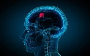 La recuperación de una cirugía por tumor cerebral puede ser complicada, dado que es posible que el paciente tenga efectos secundarios, que precisarán de rehabilitación durante un tiempo variable pero pudiendo llegar a ser hasta de un año tras la cirugía.