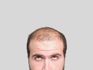 El test de lavado capilar es una prueba sencilla pero muy agotadora por parte del paciente. Consiste en recoger todo el pelo que pierde tras los lavados indicados y contarlos, para que después sean analizados por el dermatólogo y clasificarlos de forma que se conozca el origen de la caída activa del cabello.