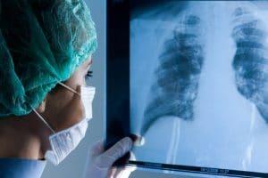 a toracocentesis está indicada para personas que presentan derrame pleural que da lugar a un mal funcionamiento de los pulmones