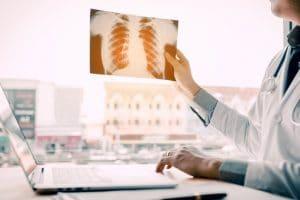 El trasplante de pulmón está indicado para pacientes menores de 65 años que tengan una enfermedad pulmonar grave,