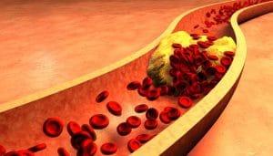 el colesterol alto se descubre en una analítica ocasional que se realiza al paciente, que incluya  bioquímica sanguínea.