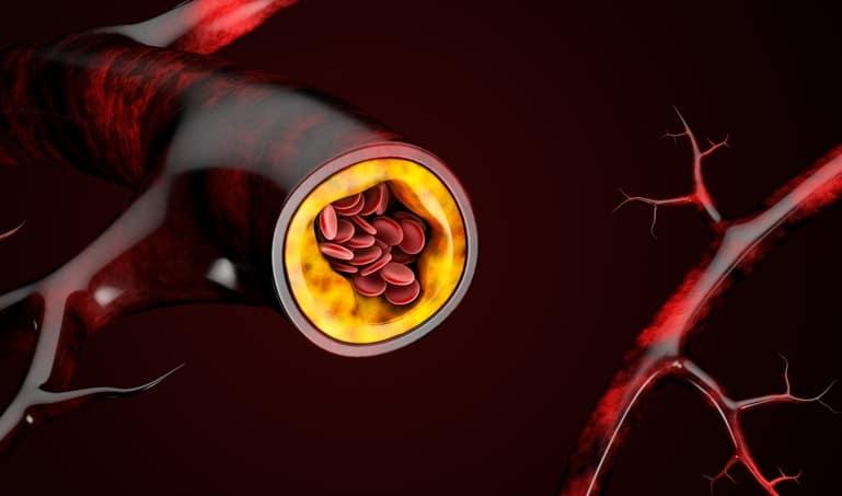 Niveles de colesterol: todo lo que tienes que saber